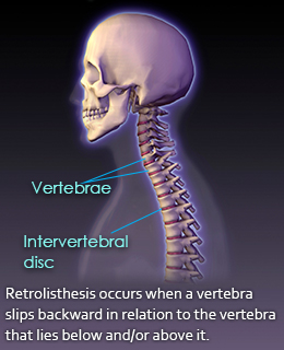 retrolisthesis more condition_symptoms Symptoms of retrolisthesis vary from person to person and range from mild to severe symptoms may include any combination of the following many different techniques and methods are available to treat retrolisthesis, but these depend on the severity of the retrolisthesis and other areas of.
