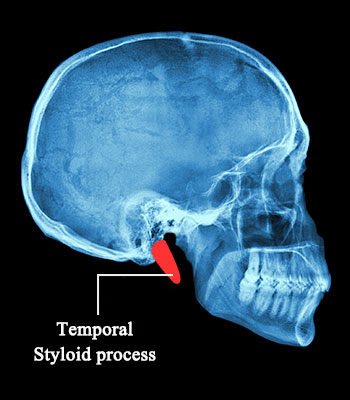 Definition Function And Types Of Styloid Processes You Must