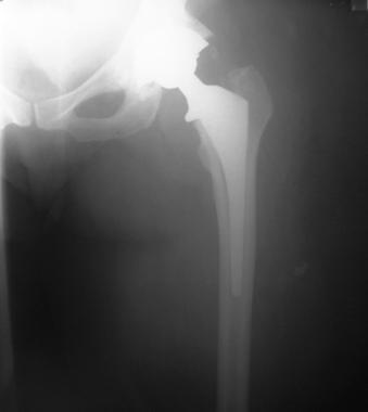 Acetabular wear in total hip arthroplasty. Cementl