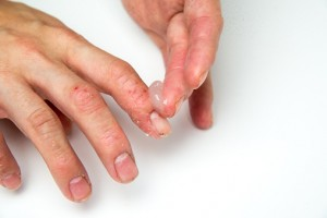 Psoriatic arthritis onset in psoriasis patients linked to physical trauma